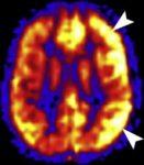 MR ASL - migréna v akutním stadiu s hyperperfúzí levé hemisféry