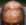 Postižení kůže na hlavě s jizevnatou alopecií
