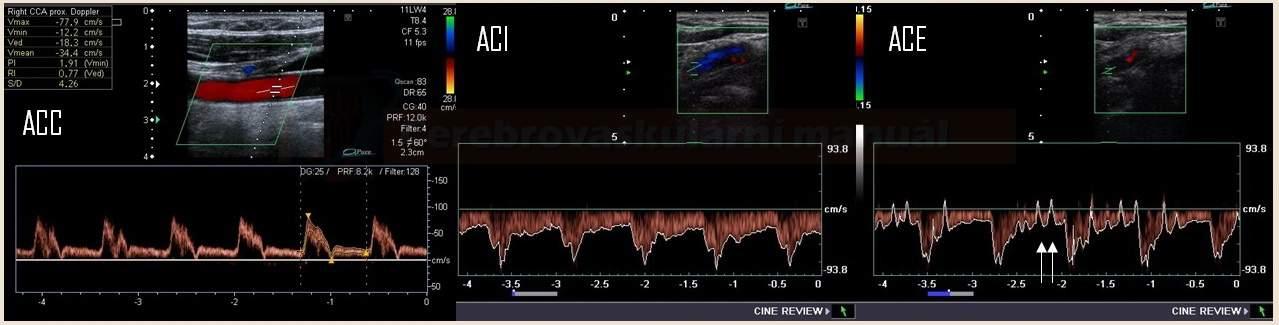 Dopplerovská křivka v ACC, ACI a ACE