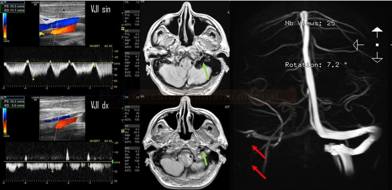 Okluze sinus sigmoideus a počátečního úseku v.jugularis interna, minimální toky ve VJI vpravo v krčním úseku