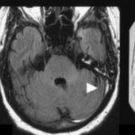 SAK na podkladě trombózy SSS a ST vlevo [Oppenheim, 2005]