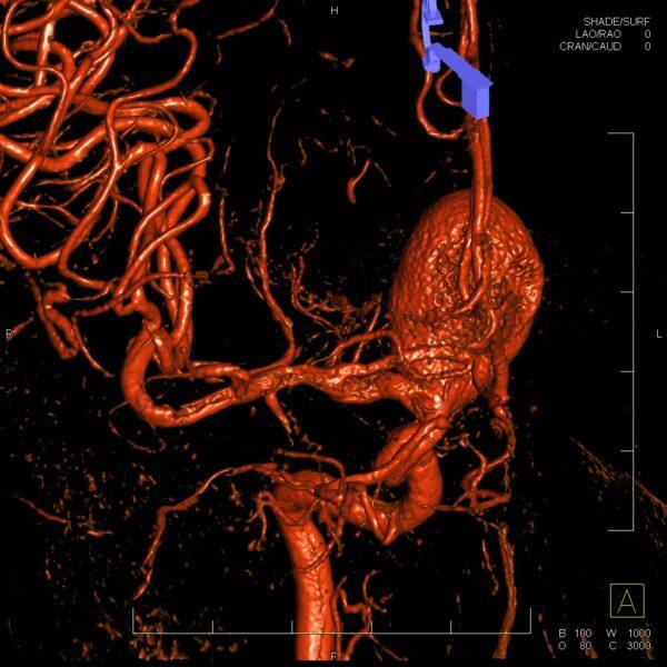 3D DSA - gigantické aneuryzma ACI
