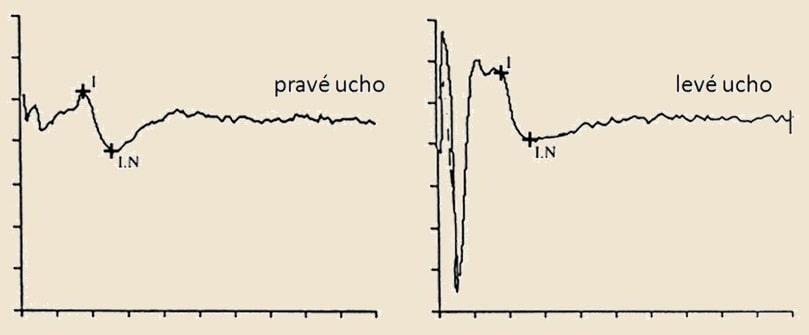 BAEP u mozkové smrti - absence II-V. vlny