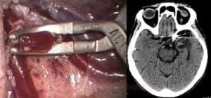 Clipping aneuryzmatu, artefakty na CT mozku v místě clipu.