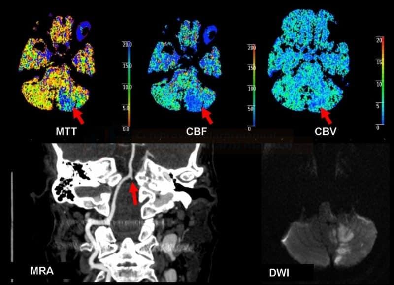 Pacient s akutní okluzí AV4 vlevo. Patrno prodloužení MTT, pokles CBF a v menším roszahu už i CBV. MR DWI provedené za 12 hodin po trombolýze zobrazuje výslednou ischemii. NIHSS 0.