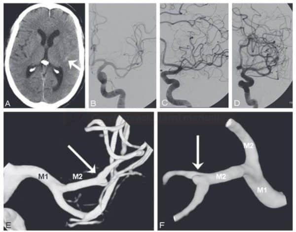 Detekce aneuryzmatu pomocí 3D DSA