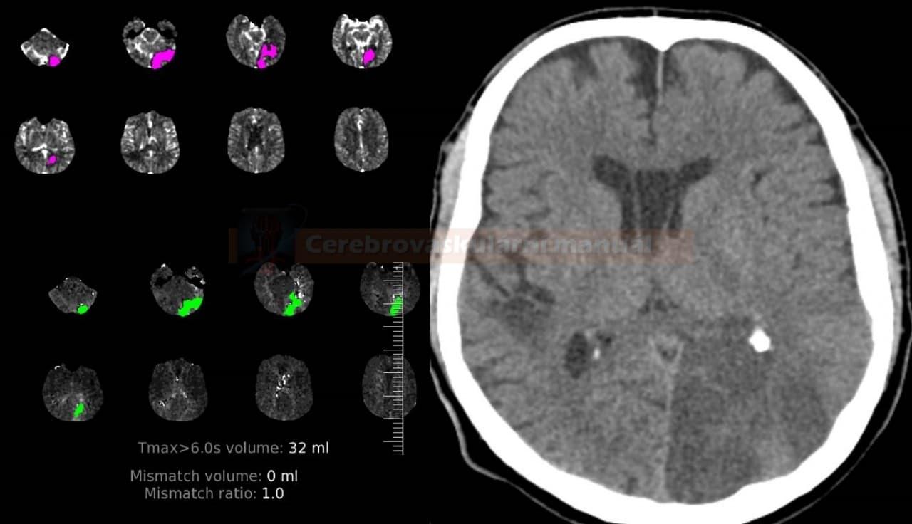 CT perfúze a CT nativ - pacient s akutní okluzí ACP vlevo, mismatch 1