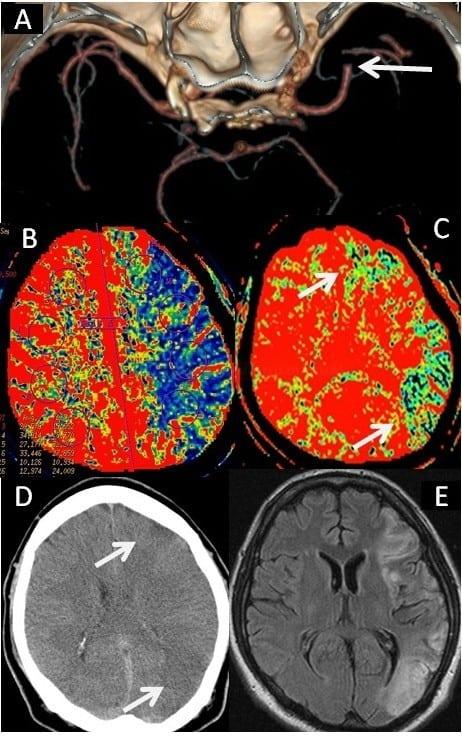 Akutní okluze ACM vlevo. A- CTA s okluzí ACM vlevo, B – snížení CBF v povodí ACM vlevo nastavené k určení penumbry, C– oblasti s poklesem CBV nastaveným k určení jádra infarktu. Krátce po zahájení IV trombolýzy došlo k plné rekanalizaci tepny. Na obrázku C a D rozsah ischemie na CT a MR