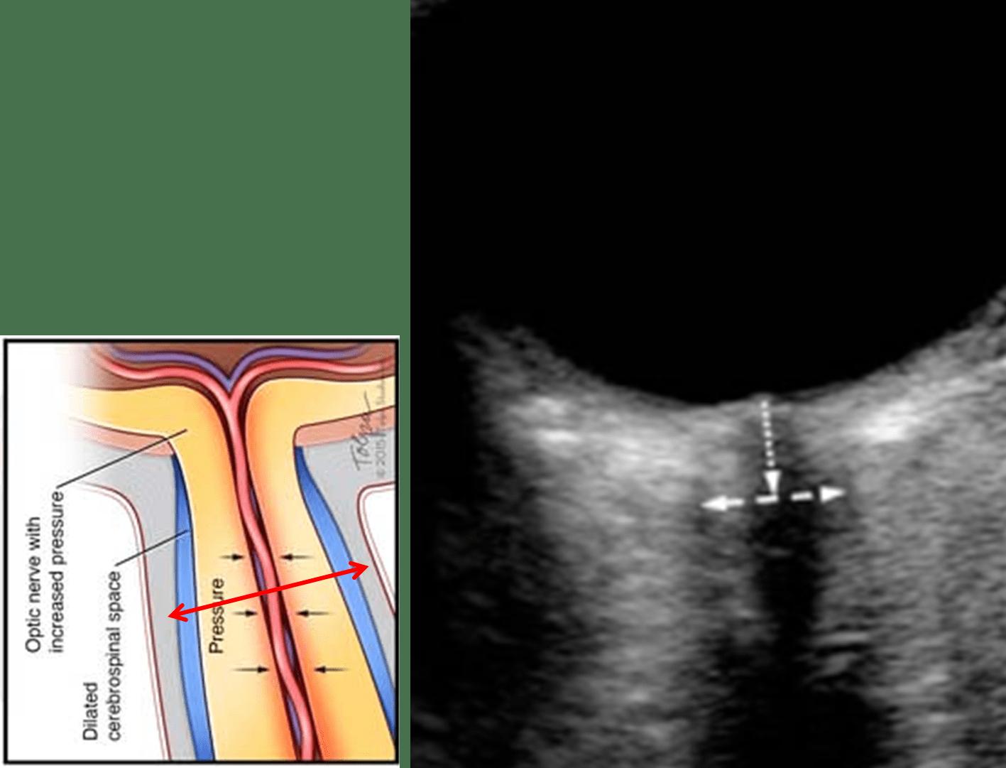 Optic nerve sheath diameter (ONSD)