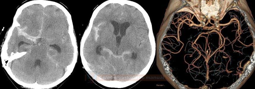 SAK při aneuryzmatu na ACM