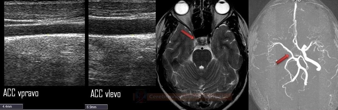 Hypoplazie ACC a aplazie ACI pravo u 20ti leté pacientky. Intrakraniálně přetrvává fetální spojka mezi VB a karotickým řečištěm