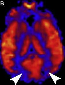 ASL u posteriorní reverzibilní encefalopatie (PRES)