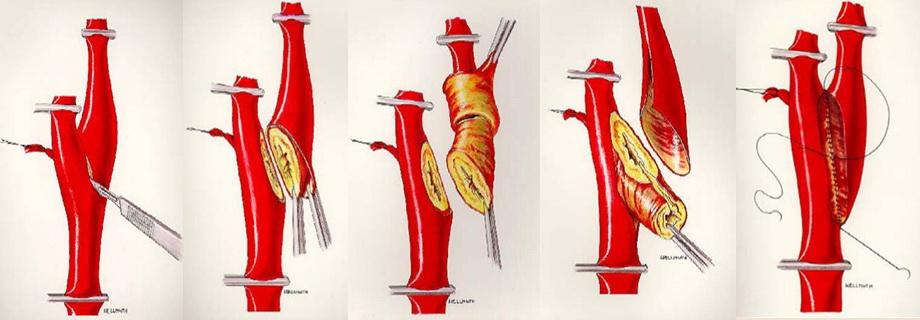 Everzní endarterektomie