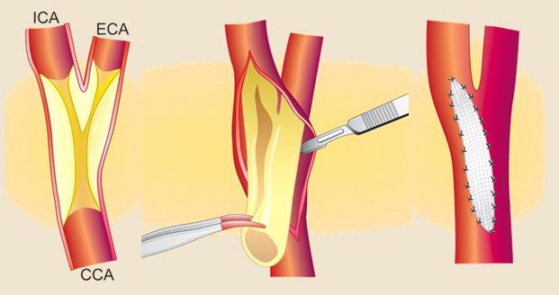 Podélná karotická endarterektomie