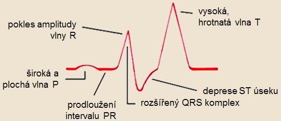 Změny na EKG při hyperkalémii