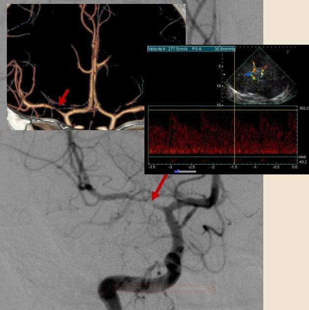 Stenóza a.cerebri media v M1 úseku (CTA, DSA, TCCD)