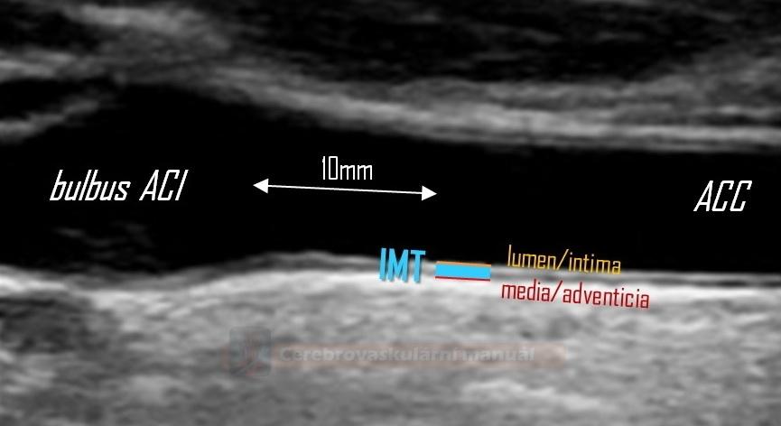 Měření karotické IMT (Intima-Media Thickness)
