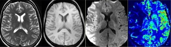 Rozsáhlá léze na DWI i PWI se kryje, penumbra není patrná, jsou postižena i bazální ganglia
