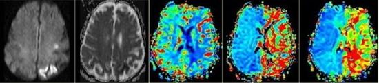 Malá léze na DWI, rozsáhlá porucha perfúze na PWI, ideální kandidát pro reperfúzní terapii