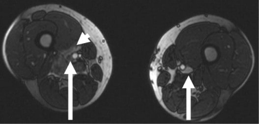 MR venografie - trombóza v.femoralis vpravo (hypointenzní trombus s edémem v okolí - malá šipka)