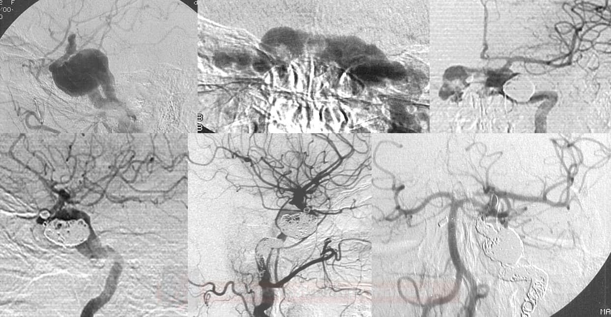 Okluze přímé CCF (vzniklé rupturou aneuryzmatu ACI do sinus cavernosus) postupnou embolizací aneurzymatu a následně celé ACI