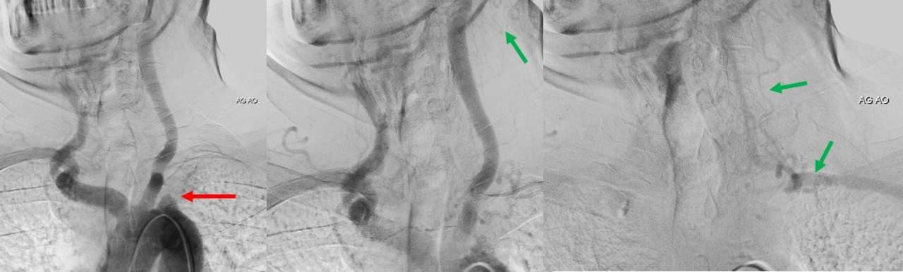 Steal syndrom v AG obraze. Okluze a.scl. vlevo, pozdní plnění jejího distálního úseku cestou a.vertebralis