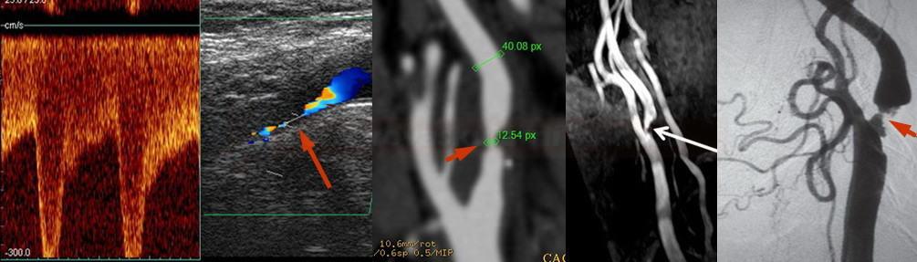 Možnosti detekce karotické stenózy (UZ, CTA, MRA, DSA)