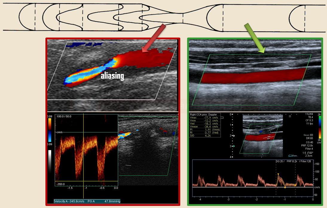 Stenóza ACI v duplexní sonografii - aliasing v barevném modu a turbulentní zrychlené toky při dopplerovském vyšetření