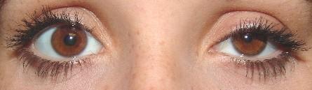Hornerův syndrom vlevo ( mióza, ptóza, enoftalmus)