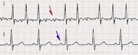 Nahoře fibrilace síní, dole sinusový rytmus