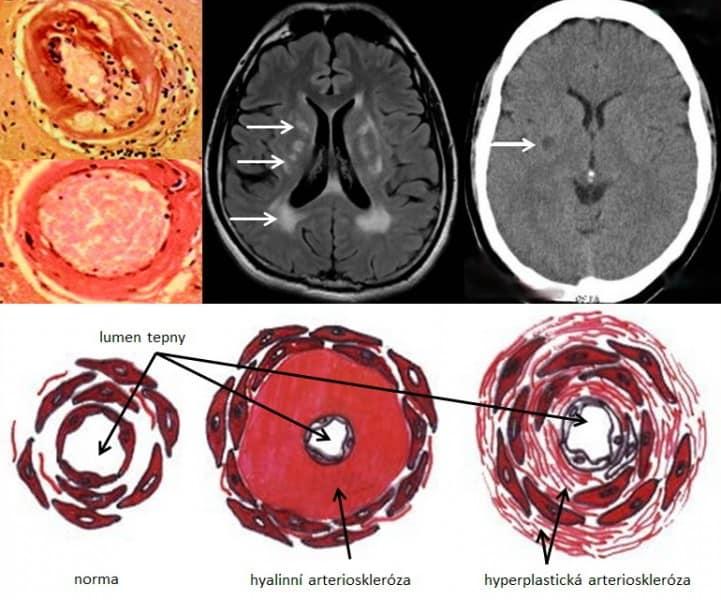 Mikroangiopatie