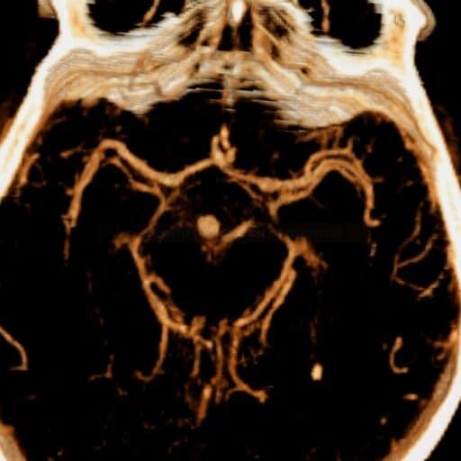 CT angiografie - subarachnoidální krvácení v důsledku ruptury aneuryzmatu na vrcholu a.basilaris