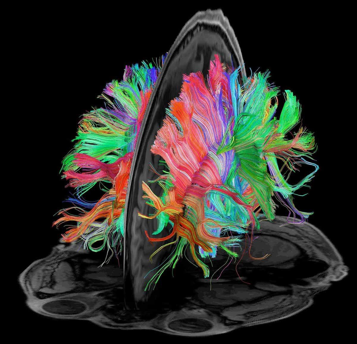 Diffusion Tensor Imaging (DIT) - traktografie