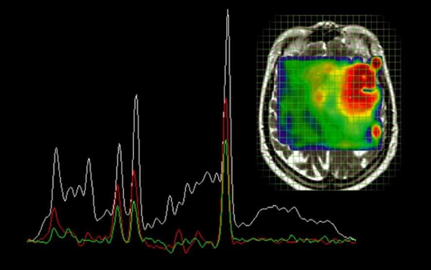 MR spektroskopie