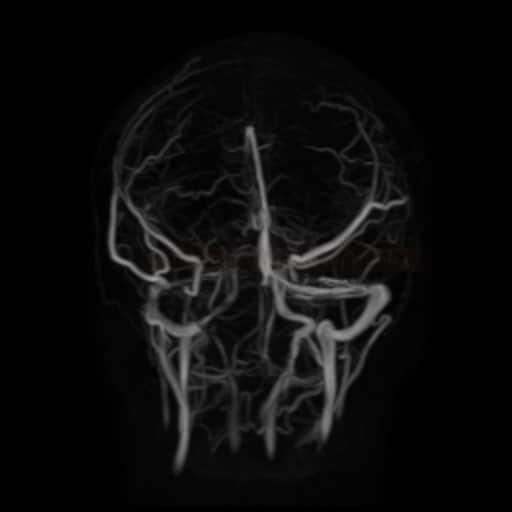 MR venografie - trombóza SSS a ST