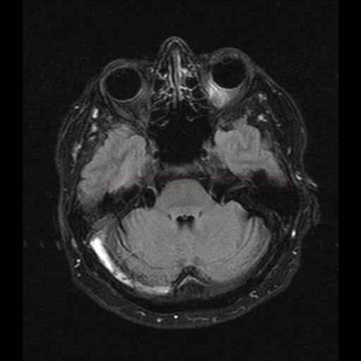Trombóza sinus transversus a sigmoideus
