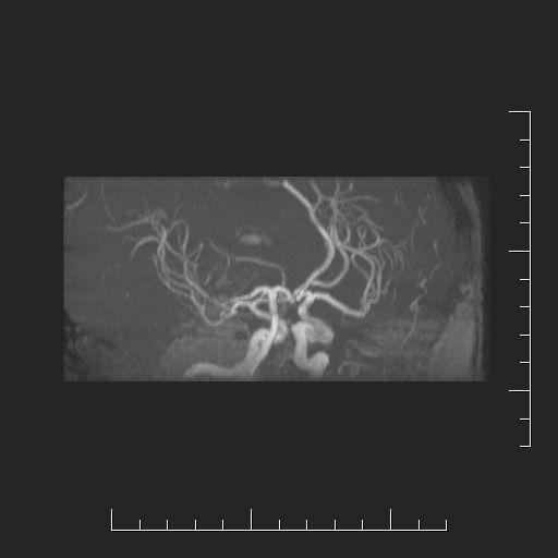 Kontrolní MRA po embolizaci aneuryzmatu na ACP vpravo