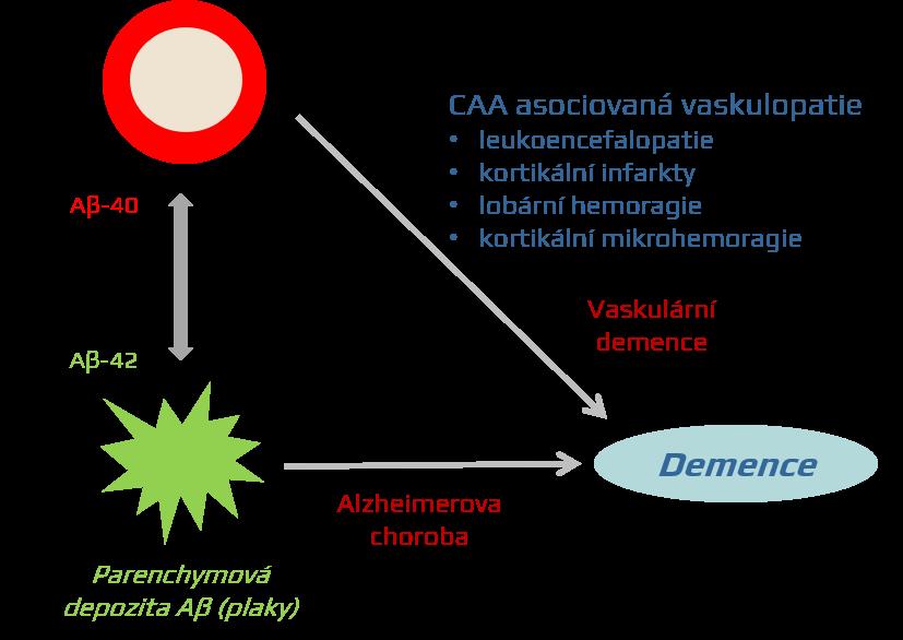 Cerebrální amyloidní angiopatie