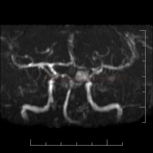 Aneuryzma sifonu ACI vlevo na MRA