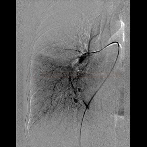 Plicní AV malformace na DSA