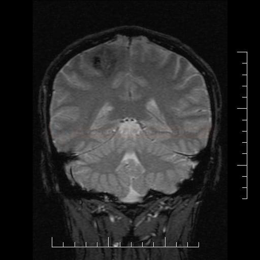 Zakrvácení z venózního angiomu na MR GRE