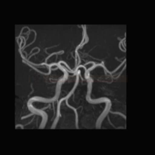 Kontrolní MRA po coilingu aneuryzmatu na PICA
