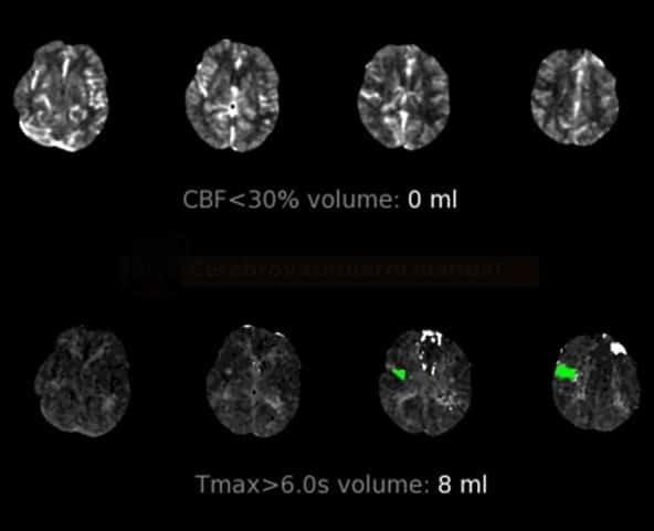 CT perfúze u okluze M3 úseku ACM vpravo