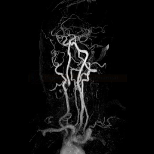 Těsná stenóza ACI dx na MRA