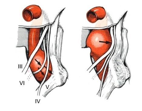 Syndrom vnější stěny sinus cavernosus