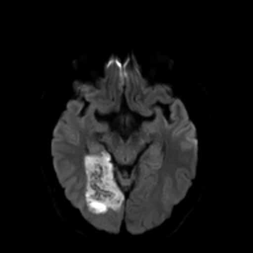 Spontánní hemoragická transformace ischemie v povodí ACP vpravo